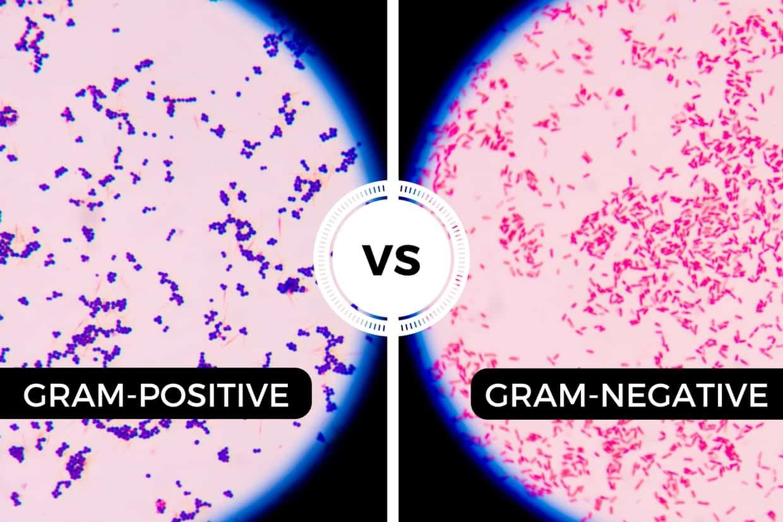 Gram-positive vs Gram-negative